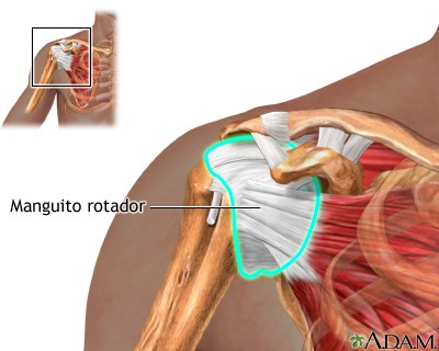 tenditis rotulinia
